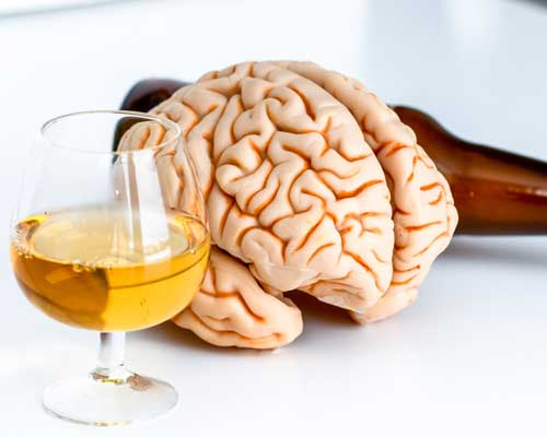 alcohol-brain-damage